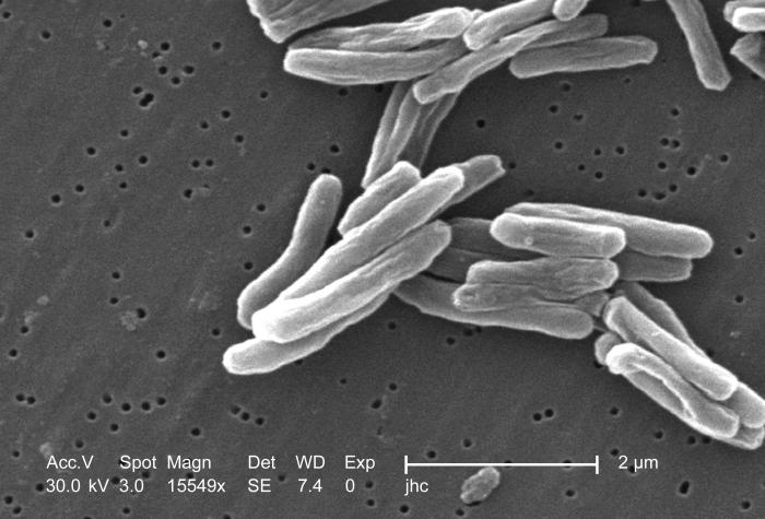 This+is+an+image+of+the+TB-causing+bacteria.+